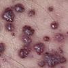 Migalastat (Galafold): New treatment for Fabry disease