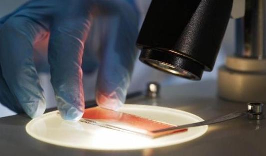 Chlordécone: classé comme cancérogène possible pour l'homme depuis