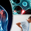 New treatments for multiple sclerosis and inflammatory arthritis approved