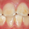 Calcium deficiency in cells due to ORAI1 gene mutation leads to damaged tooth enamel