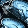 Therapies that promote progressive multifocal leukoencephalopathy (PML)