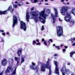 East Asians, Europeans: Genomic Features of Lung Adenocarcinoma Differ