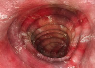 Colitis ulca