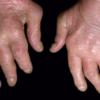 Tofacitinib (Xeljanz): Gewisse Arzneimittel haben es in sich