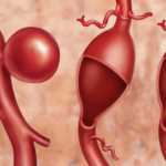 Abdominal aortic aneurysm: Genetic scoring can identify more men at risk