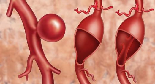 Abdominal aortic aneurysm: Genetic scoring can identify more men at risk