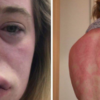 Rare cases of anaphylaxis with COVID-19 vaccines